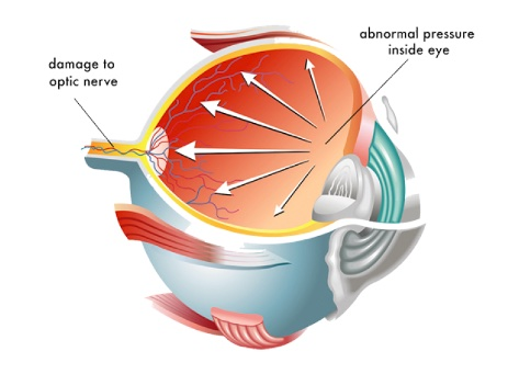 Illustration on what is eye pressure on how to relieve it topic