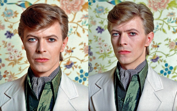 David Bowie in upclose photos showing his anisocoria eye problem